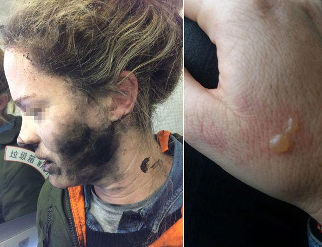 The woman was left with a burnt face, hair and hand. Source: ATSB
