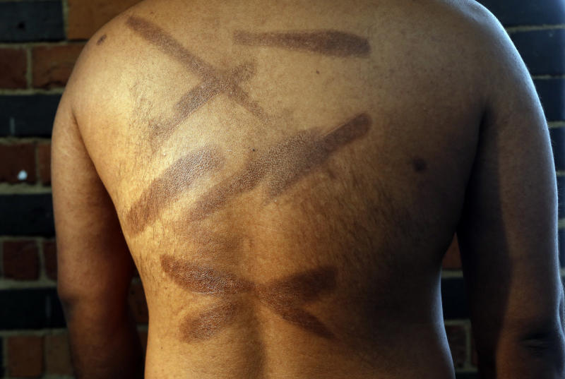 FILE - In this July 18, 2017, file photo, a Sri Lankan man known as Witness #199 shows the scars on his back during an interview in London. He is one of more than 50 ethnic Tamil men seeking political asylum in Europe, after they were, they said, abducted and tortured under Sri Lanka's current regime. Sri Lanka's defense minister denied Tuesday, Nov. 14, that his country committed torture and rape of suspected rebels, as charged by more than 50 Tamil ethnic minority men. (AP Photo/Frank Augstein, File)