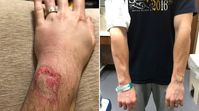 A man posts images of the burn on his wrist after his Fitbit started smoking while he was asleep.