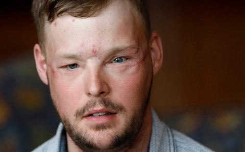 US man Andy Sandness recieved a face transplant and is on a daily regimen of anti-rejection medication - Credit: AP Photo/Charlie Neibergall