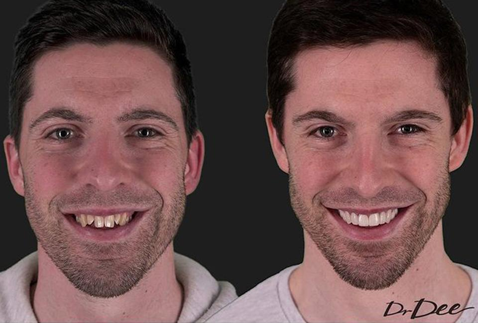 A before (left) and after image of Married At First Sight's Patrick Dwyer dental transformation