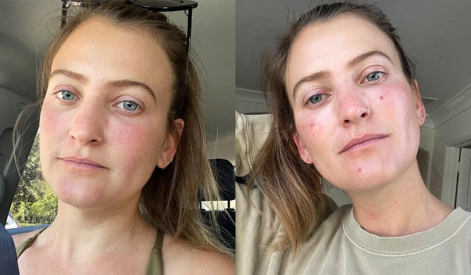 """<h2>What Is PDL?</h2> <p>Before diving in, let's quickly classify the two main types of lasers: ablative and non-ablative. """"A fractionated ablative laser vaporizes small columns of skin from the exterior in, so all skin layers are effected,"""" said Dr. Herrmann. """"Non-ablative lasers and energy-based devices target deeper structures and spare the skin's surface."""" An ablative laser is the more """"intense"""" of the two (<a href=""""http://www.popsugar.com/beauty/What-Fraxel-Laser-42934578"""" class=""""link rapid-noclick-resp"""" rel=""""nofollow noopener"""" target=""""_blank"""" data-ylk=""""slk:think: Fraxel"""">think: Fraxel</a>) and requires a lot more downtime in order to heal, as well as specific ointments.</p> <p> PDL is a non-ablative laser.</p> <p>So how does PDL work? """"The laser light targets hemoglobin, a protein which is in red blood cells,"""" Dr. Herrmann said. """"It heats it up, and this heat collaterally damages the blood vessel walls surrounding it, which causes them to collapse and disappear. Because we have so many extra vessels in the skin, removing a few doesn't have any negative health consequence.""""</p> <h2>Does PDL Hurt?</h2> <p>I have a pretty high pain tolerance and have subjected my skin to many a non-surgical procedure (ablative lasers, <a href=""""http://www.popsugar.com/beauty/what-to-know-undereye-filler-47266526"""" class=""""link rapid-noclick-resp"""" rel=""""nofollow noopener"""" target=""""_blank"""" data-ylk=""""slk:fillers"""">fillers</a>, Botox, and the like), and to me this laser is not painful. When going in for PDL, you likely won't need to get numbed - each zap of the laser feels like a little snap of a rubber band.</p> <p> The most annoying part of the process, in my opinion, is the cold burst of air that the machine spurts out to offset the heat from the laser. I wouldn't say the whole thing is particularly painful - rather it takes you by surprise every time it fires. Plus, it only takes about five minutes depending on how many vessels you need to take care of.</p> <h2>What You Can Expect For """
