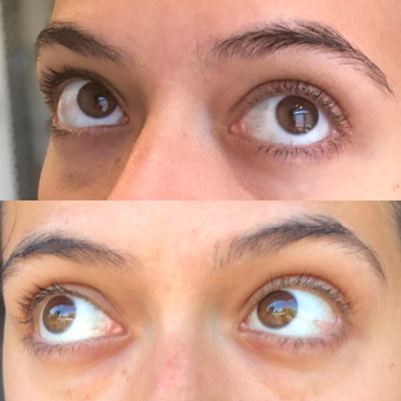 Results of the Radiance Eye Cream after two weeks of use: Week one (left photo), week two (right photo).