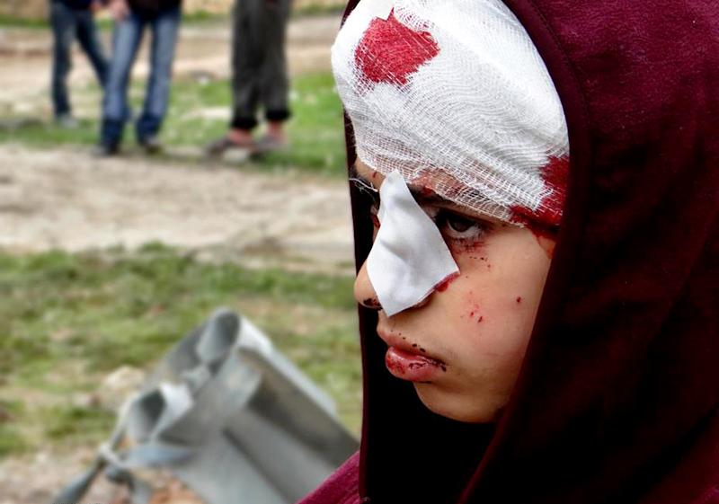 This citizen journalism image provided by Aleppo Media Center AMC which has been authenticated based on its contents and other AP reporting, shows a Syrian child, injured by heavy bombing from military warplanes, in the town of Hanano in Aleppo, Syria, Friday, March 1, 2013. Syrian government forces fought fierce clashes with rebels attacking a police academy near the northern city of Aleppo on Friday, while the bodies of 10 men most of them shot in the head were found dumped along the side of a road outside Damascus, activists said. (AP Photo/Aleppo Media Center AMC)