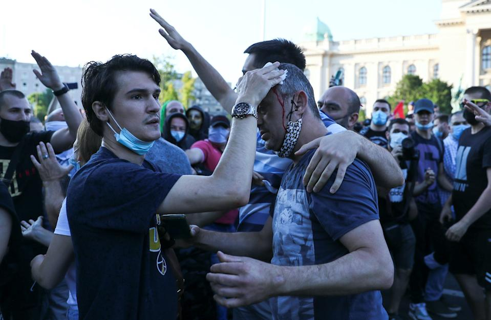 Actor and leader of PSG movement Sergej Trifunovic receives help after being attacked by right wing protesters during an anti-government rally in Belgrade, Serbia, on July 8, 2020.