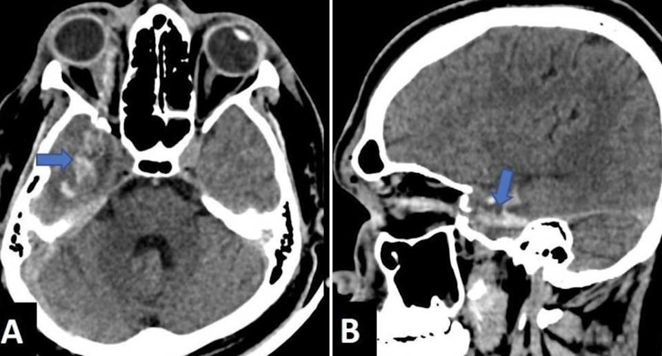 A CT scan shows the head of a man stabbed in the eye with an ice pick.