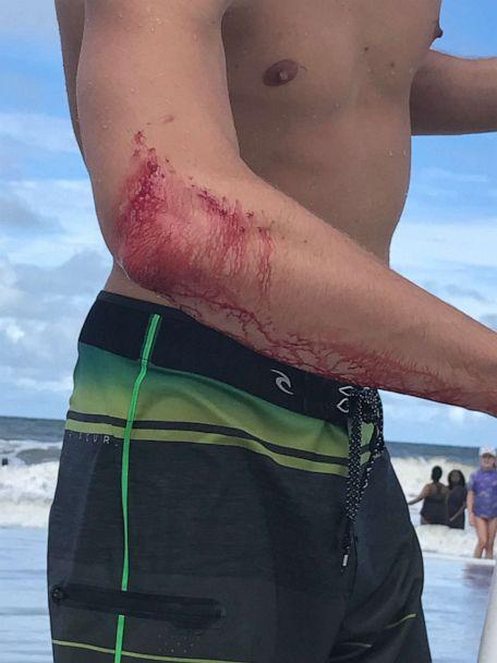 PHOTO: Frank O'Rourke, 23, shows off the bite wound on his right arm after he was bitten by a shark while surfing in Jacksonville Beach, Fla., on Saturday, July 27, 2019. (Courtesy Frank O'Rourke)