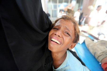 FILE PHOTO: A boy cries at al-Thawra Hospital after his brother was injured in a strike near the hospital in Hodeidah, Yemen August 2, 2018. REUTERS/Abduljabbar Zeyad/File Photo