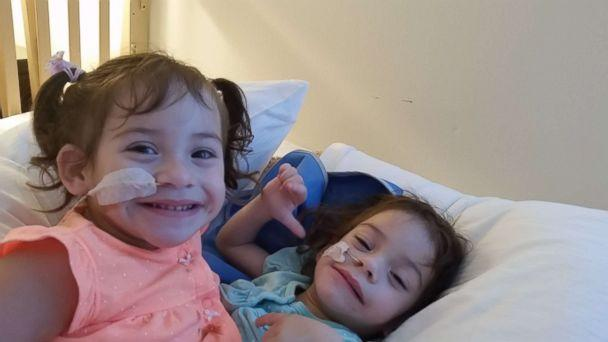 Formerly conjoined twins Eva and Erika Sandoval are seen here before their separation surgery. (Courtesy Sandoval Family)