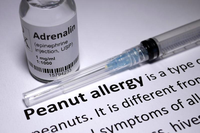 Peanut Allergy - one of many common allergies.