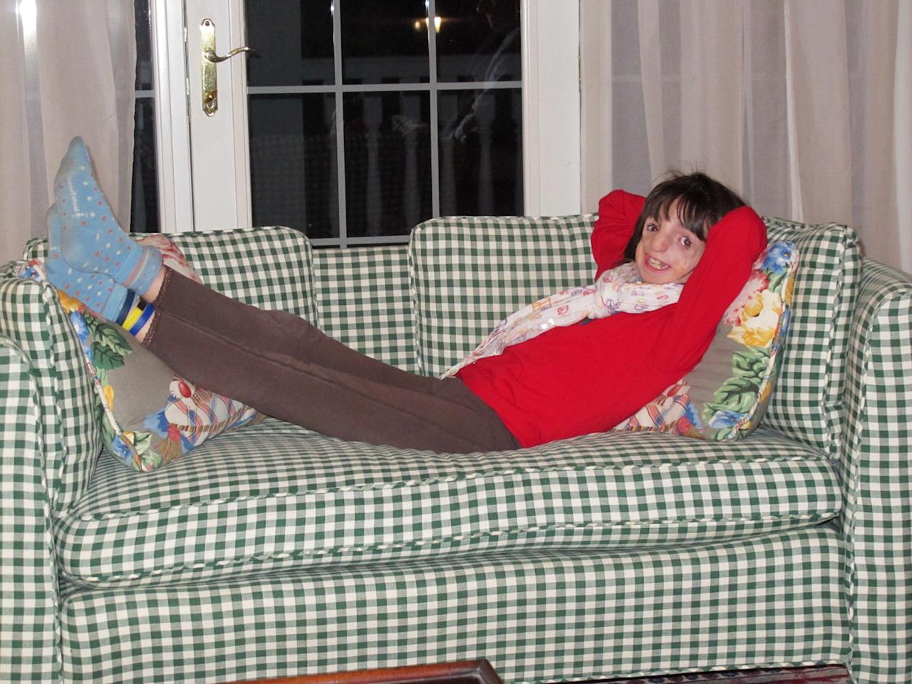 "In this Feb. 18, 2012 photo provided by the family, Clara Beatty, 9, smiles as she reclines on a couch at her home in Winnetka, Ill. Despite having Treacher Collins syndrome which deformed her face, her parents say Clara is a strong little girl who generally navigates the world with ease. Clara does say that people's stares and comments annoy her sometimes, but generally, she has learned to ignore them - or ""smiles and says hi"" as her parents have instructed her to do. (AP Photo)"