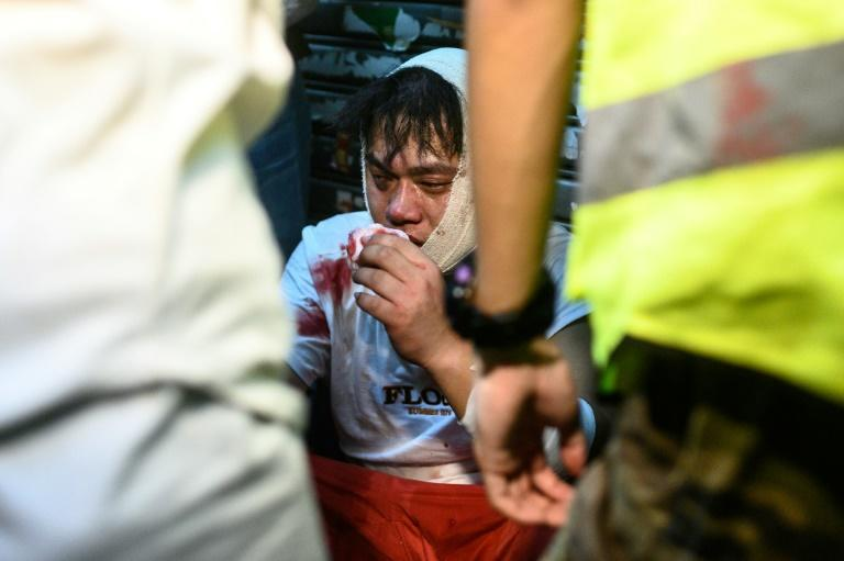 """With pro-democracy protests turning increasingly violent, Hong Kong chief executive ha swarned the city is close to a """"very dangerou situation"""""""