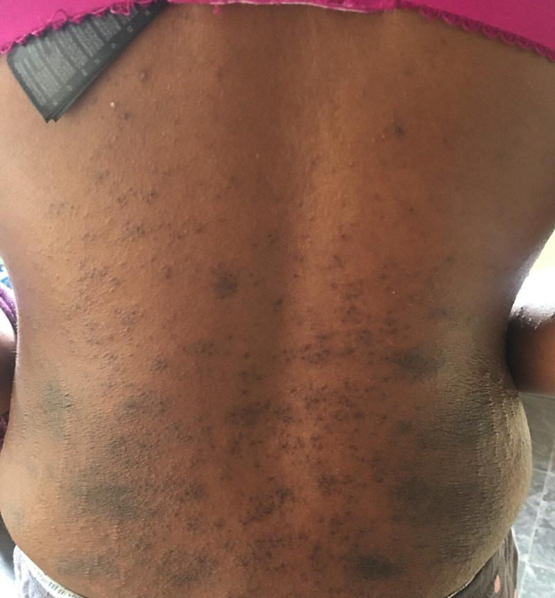 A rash on the back of a Covid patient. (Photo: Covid Symptom Study)
