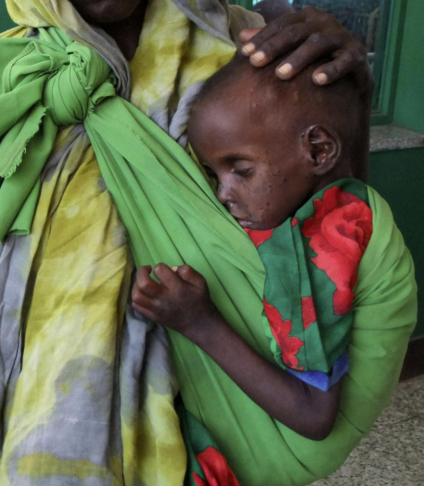 A severely malnourished child from southern Somalia is conforted by his mother in Banadir hospital, Mogadishu, Somalia, Tuesday, July 12, 2011, after fleeing from southern Somalia. Thousands of people have arrived in Mogadishu over the past two weeks seeking assistance and the number is increasing by the day, due to lack of water and food. U.N. officials sounded the alarm Tuesday about a deepening crisis in East Africa, saying they are struggling to cope with the number of people on the move in the region because of the severe drought and continued fighting in Somalia. (AP Photo/Farah Abdi Warsameh) .
