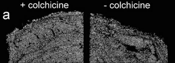 Micro-CT scans of stromatolites seeded with foraminifera. On the left, forams were treated with a chemical that prevented their pseudopods from disrupting its fine layers. The one on the right was not treated.
