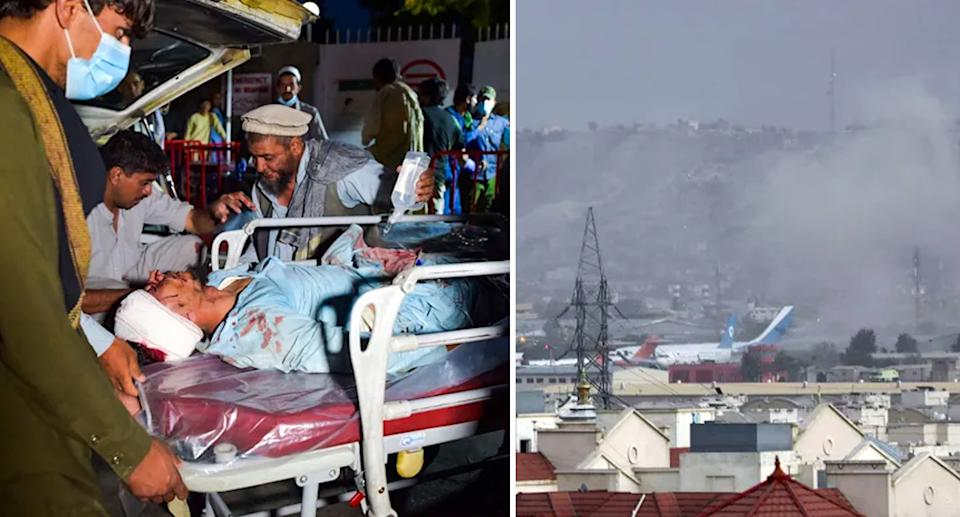 An injured man is laid on a stretcher (left) after the attack which sent smoke into the Kabul skyline (right). Source: Getty
