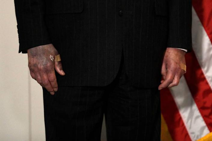 The hands U.S. Senate Majority Leader Mitch McConnell were seen when he talked to the media this week.