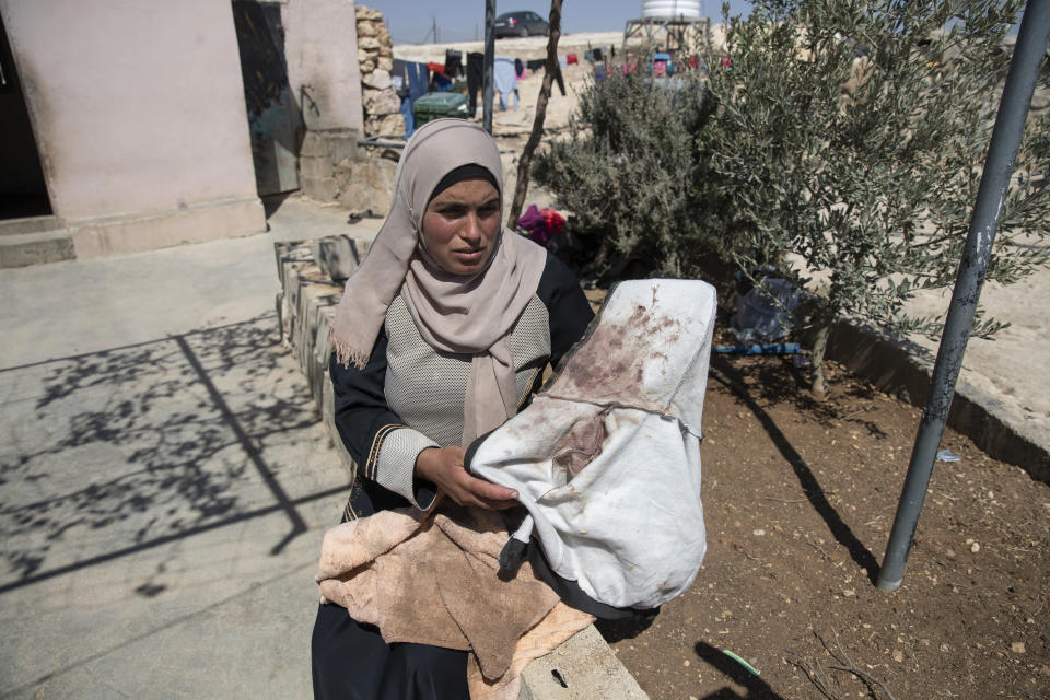 Palestinian mother Baraa Hamamdi holds her injured son's bloodstained clothes that was left behind after Mohammed was evacuated to an Israeli hospital, following a settlers attack from nearby settlement outposts on her Palestinian Bedouin community, in the West Bank village of al-Mufagara, near Hebron, Thursday, Sept. 30, 2021. (AP Photo/Nasser Nasser)