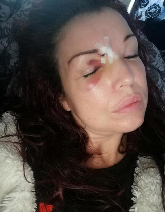 Clarissa suffered swelling and couldn't drive for a week following the incident (Photo: Supplied)
