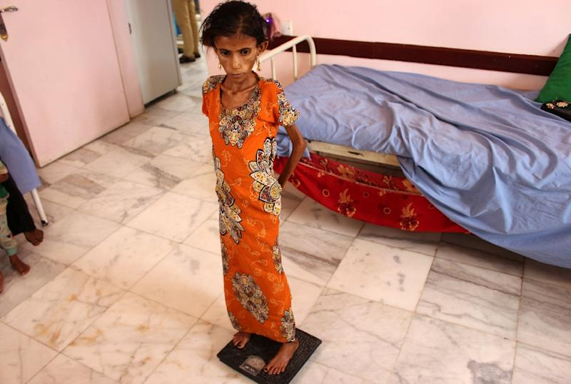 Aged 12, Fatima Hadi is one of two million children in Yemen suffering from accute malnutrition, UN figures show