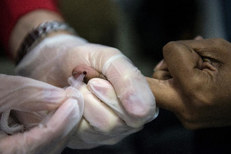 An HIV blood test is administered in a mobile testing facility on May 24, 2013 in Washington, DC (AFP Photo/Brendan Smialowski)