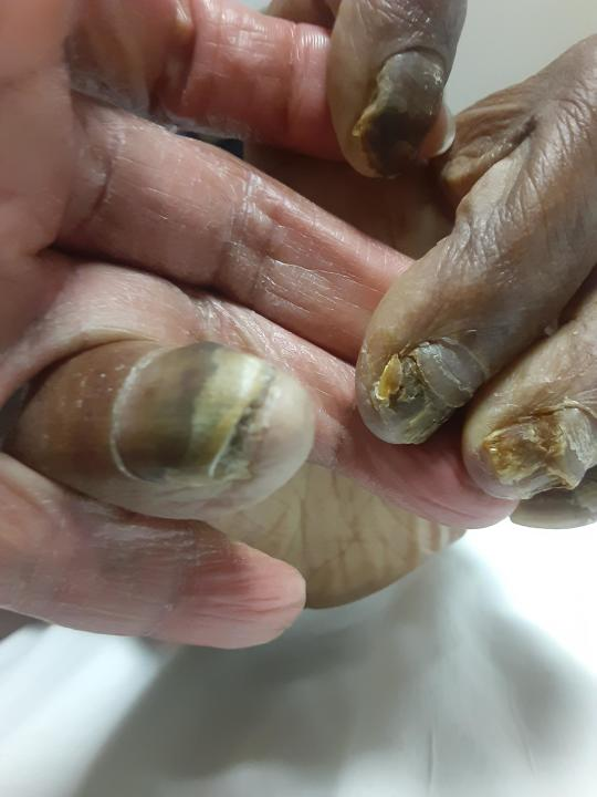 This February 2021 photo provided by Tamika Dalton shows the fingernails of her mother, Theresa Dalton, at the the Blumenthal Nursing and Rehabilitation Center in Greensboro, N.C. When COVID-19 kept visitors from going inside, Dalton would often visit at her mother's window a couple times a day. Through the glass, Dalton didn't like what she saw: Fewer and fewer aides passed by, and her mother sometimes sat for hours in a soiled diaper. (Tamika Dalton via AP)
