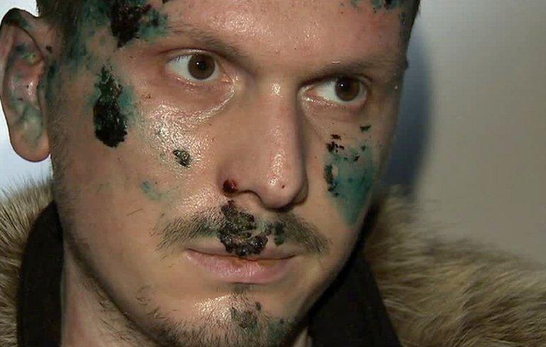A Russian Channel One undated television grab shows a man identified as Adam Osmayev