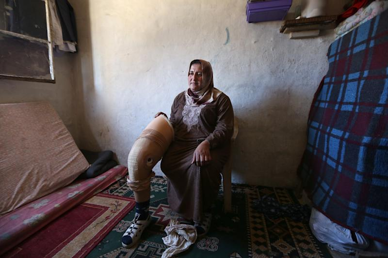 In this Thursday, March 27, 2014 photo, Reem Diab, 34, who lost her leg on Oct. 25, 2012 when a shell slammed into her house in the town of Khan Sheikoun in central Syria, holds her artificial leg in Chtaoura, in the Bekaa valley, east of Lebanon. The shelling killed her husband, Mustafa, and her 15-year-old daughter, Batoul. Syria's civil war, which entered its fourth year last month, has killed more than 140,000 people. An often overlooked figure is the number of wounded more than 500,000, according to the International Committee of the Red Cross. An untold number of those, there's no reliable estimate even, have suffered traumatic injuries that have left them physically handicapped. (AP Photo/Bilal Hussein)