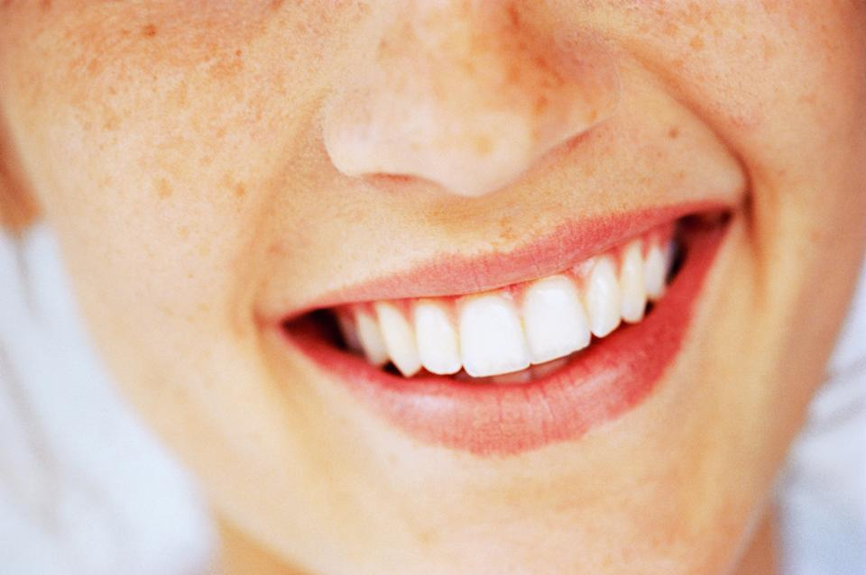 Say hello to the whitest teeth of your life. (Photo: Getty)