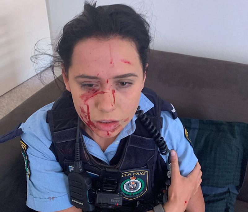 A young constable was savagely attacked when an alleged offender became agitated and aggressive. Source: Police Association of NSW