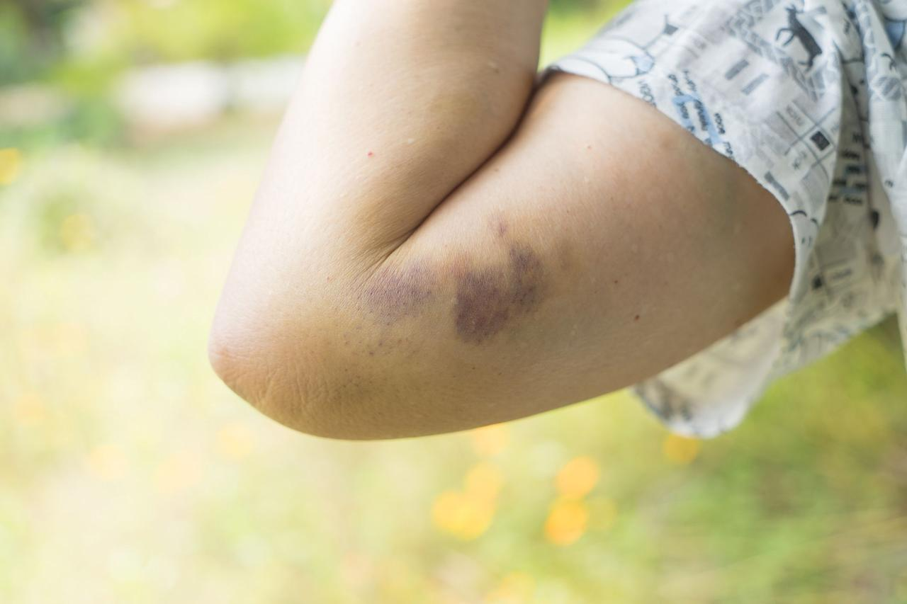 """<p>We've all been there—a shin to a coffee table or a trip on the sidewalk can leave you with a black-and-blue or two. But what is a bruise, exactly? """"A bruise is a reflection of minor injury to the blood vessels under the surface of the skin. If these vessels are damaged, a small amount of blood can leak out, giving the classic blue, black, or purple discoloration,"""" says <a href=""""https://my.clevelandclinic.org/staff/14908-cory-fisher"""" target=""""_blank"""">Cory Fisher, DO</a>, family medicine physician at the Cleveland Clinic.</p><p>But what if you seem to be bruising easily, developing bruises on your legs, arms, and other parts of your body from even just a slight bump, or seemingly out of nowhere? Should you be worried? Keep reading to find out what could be causing your unexplained bruising—and how to heal a bruise faster.<br></p>"""