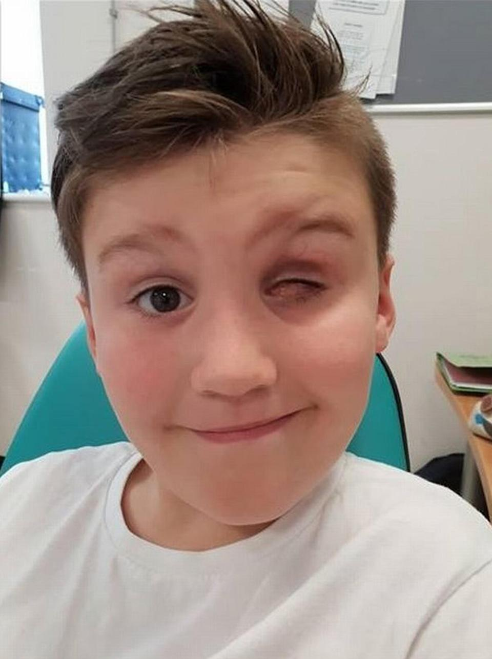 Nerf gun accident: Taylor-Jay Ravicini, 9, (pictured) from Swansea, South Wales lost is eye after a Nerf gun accident.