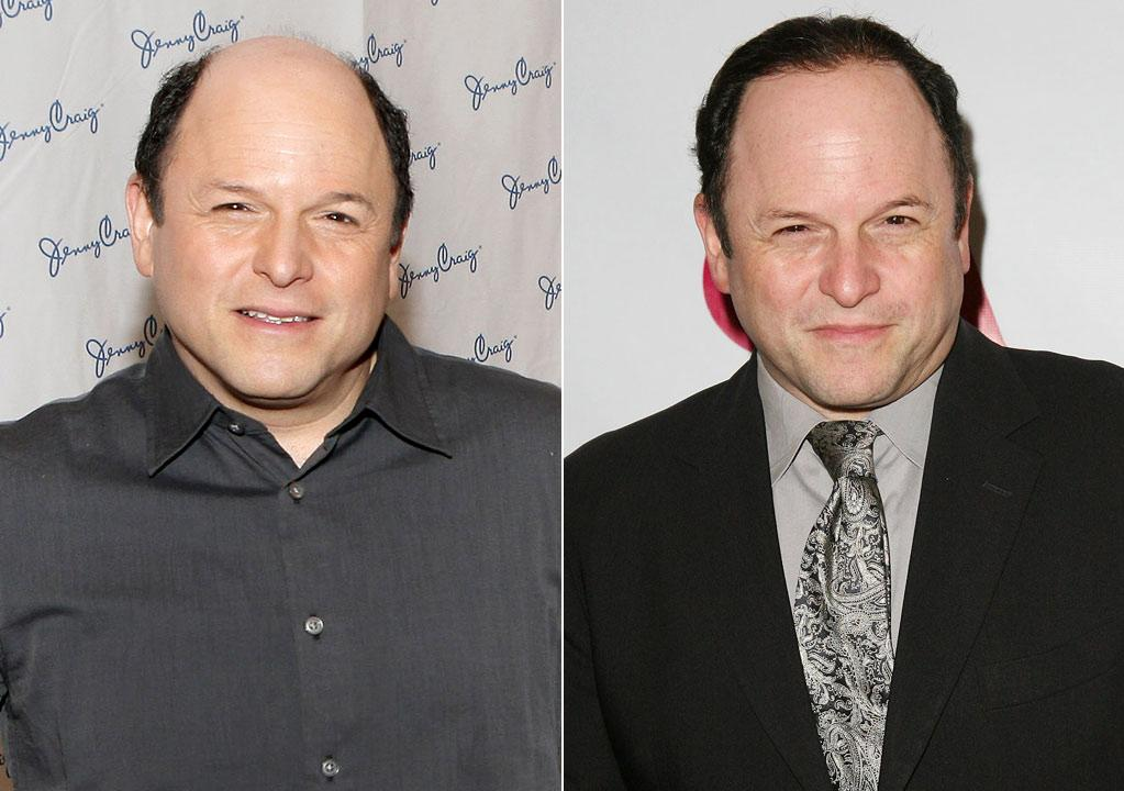 "Actor Jason Alexander, 52, appears to have grown some hair! He's been famous for his bald head since his days on ""Seinfeld,"" so it should come as no surprise that Alexander has admitted he's indeed wearing a hairpiece.        ""Women have so many choices when it comes to hair. They can go longer, shorter, longer again, get extensions.... Men don't have that luxury of choices,"" Eber said. ""They lose their hair and it really affects their self esteem and overall outlook. Go for it and wear a hairpiece! It's not just about looking good, but it's also about feeling good!""     John Lamparski/WireImage.com/Ryan Miller/Getty Images"
