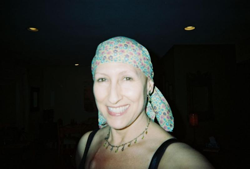 Jane was diagnosed with breast cancer aged 44 and had several lumpectomies which left her with holes in her breast tissue and radiotherapy which destroyed one areola. Source: Caters News