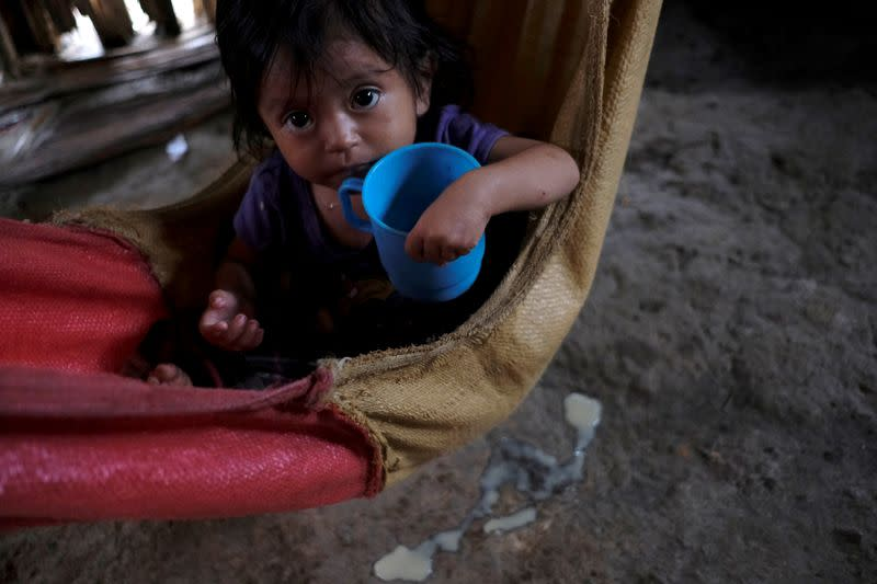 FILE PHOTO: Anayeli, a 22-month-old girl diagnosed with severe malnutrition, holds a cup at her home, in La Ceiba