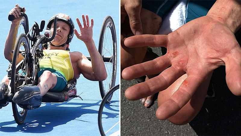It was a painful day out. Pic: Getty/AusParalympics