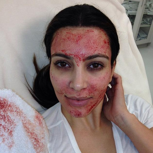 Celebrity Twitpics: Kim Kardashian underwent a 'vampire facial' for her TV show this week. The gruesome procedure involves drawing blood from the arm, spinning it in centrifuge to separate the blood and then re-inserting it into the face with needles. Kim sobbed in agony and posted for this gory Twitpic afterwards. Copyright [Kim Kardashian]