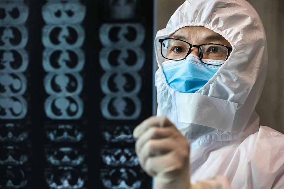 A doctor looking at a lung CT image of a patient with coronavirus. Over two dozen doctors have posted an open letter disputing the conspiracy theories suggesting the virus was engineered as a bioweapon in a lab near Wuhan. (Photo by STR/AFP via Getty Images)