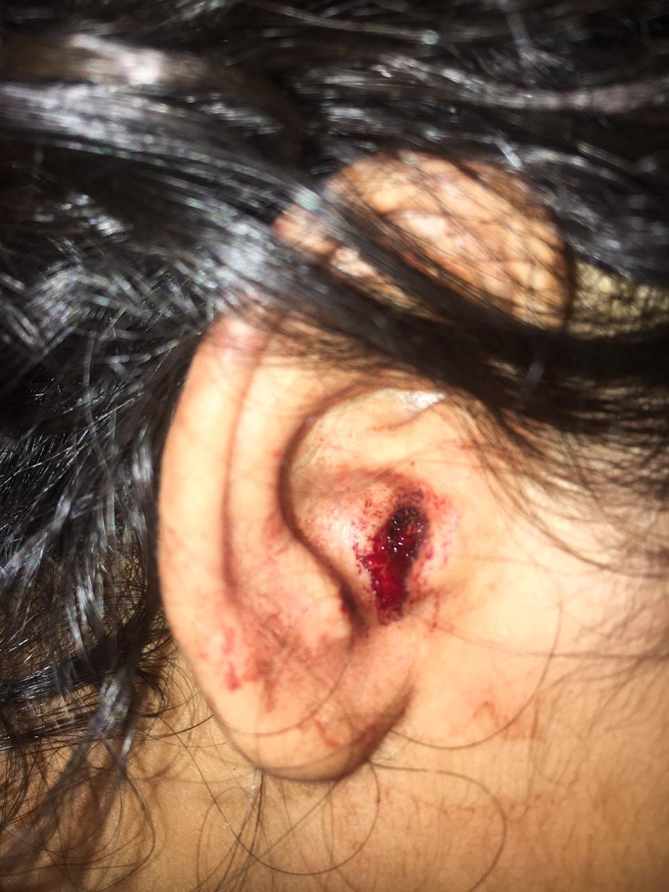 Pictured is Tha Rungkasatra's bloody ear.