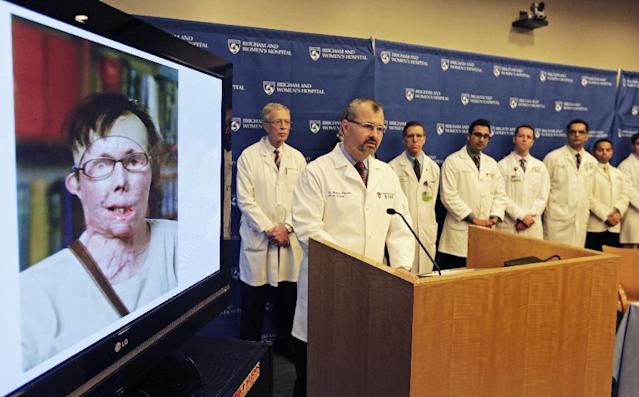 Dr. Bodhan Pomahac, at podium, with his surgical team, speaks to reporters regarding the face transplant of Carmen Blandin Tarleton, pictured left, at Brigham and Women's Hospital in Boston, Wednesday, Feb. 27, 2013. Tarleton underwent the surgery earlier this month. The 44-year-old Tarleton,of Thetford, Vt., was attacked by her former husband in 2007. He doused her with industrial strength lye. She suffered chemical burns over 80 percent of her body. The mother of two wrote a book about her experience that describes her recovery.(AP Photo/Charles Krupa)