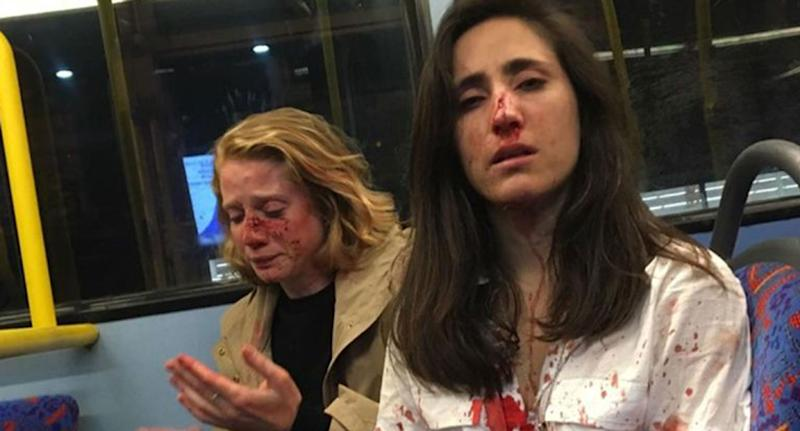 Lesbian couple attacked on London bus: Four teens charged over assault
