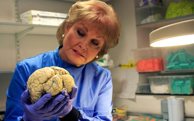 Angela Rippon returns to look at the science of ageing  - Credit: BBC
