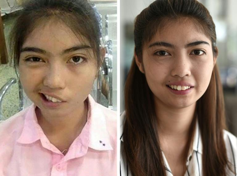 A photo combo by Paveena Foundation in 2016 and AFP's Lillian Suwanrumpha in 2017 of Thai schoolgirl Naruedee Jotsanthia who was left facially disfigured after a schoolteacher who threw a mug at her head