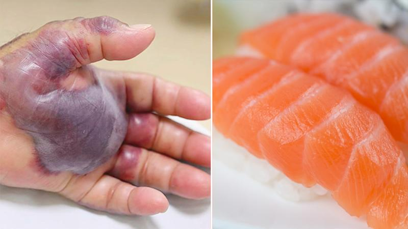 man s arm amputated after eating sushi