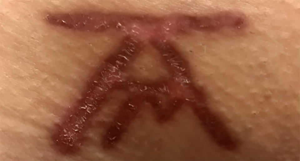The painful brand given to all DOS members. Source: YouTube/ The Lost Women of NXIVM: Rumors vs Reality