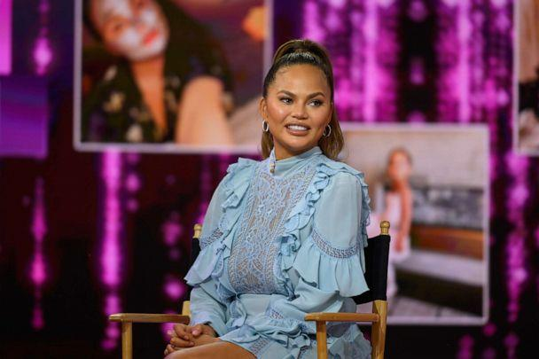 PHOTO: Chrissy Teigen appears on the Today show, Feb. 19, 2020, in New York. (Nathan Congleton/NBC/NBCU Photo Bank via Getty Images, FILE)