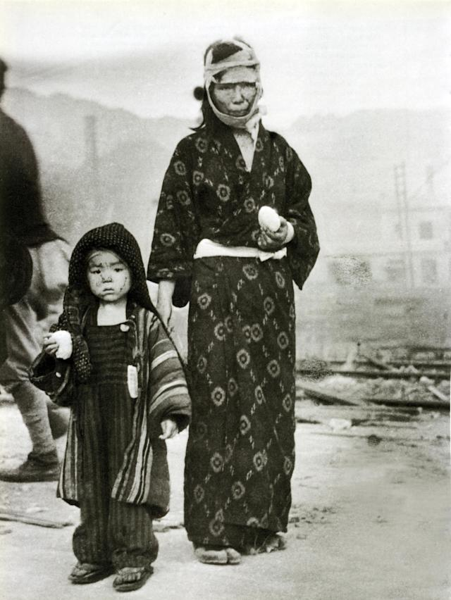 <p>A child with her mother in Nagasaki on the morning after the dropping of the atomic bomb, Aug. 10, 1945. Both have received a rice dumpling from emergency supplies. They were 1.5 km southeast of the Epicenter. (Photo: Galerie Bilderwelt/Getty Images) </p>