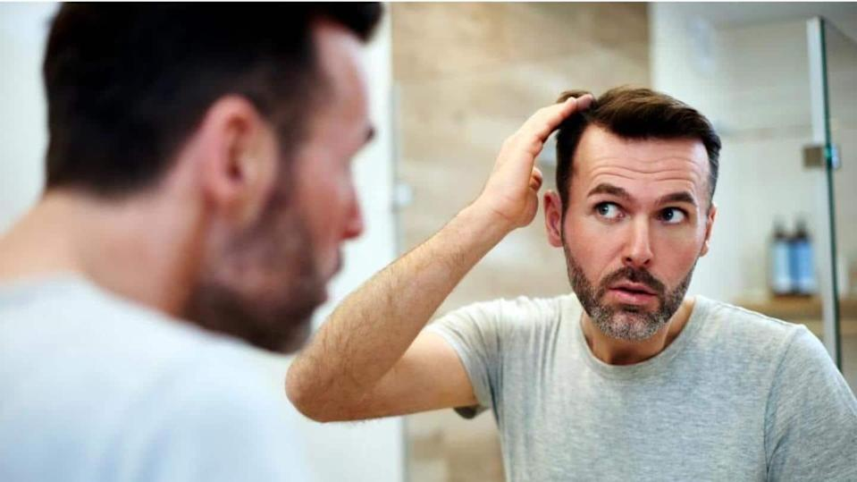 Going bald? Effective remedies to reduce hair fall in men