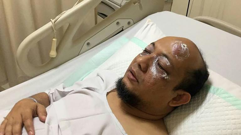 Novel Baswedan, a prominent Indonesian graft investigator, was left partially blinded by an acid attack that is yet to be solved (AFP Photo/Handout)
