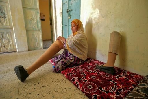 Jamila Qassem Mahyoub, a Yemeni woman whose legs were amputated after stepping on a landmine while herding her sheep in 2017, holds a prosthetic leg in a house in Yemen's third city of Taez in March 2019